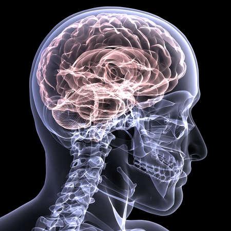 Rayos X de un esqueleto masculino con su cerebro muestra. Aislado en un fondo negro Foto de archivo - 5385315