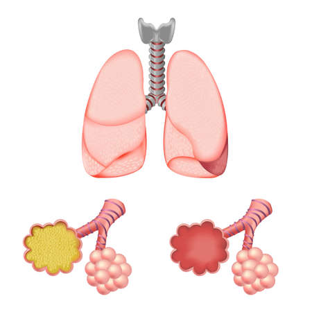 circulate: Alveoli In And Lungs, Isolated On White Background, Vector Illustration