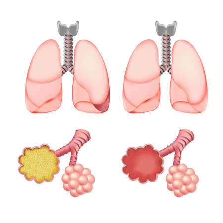 flu: Alveoli In Lungs Set, Isolated On White Background, Vector Illustration