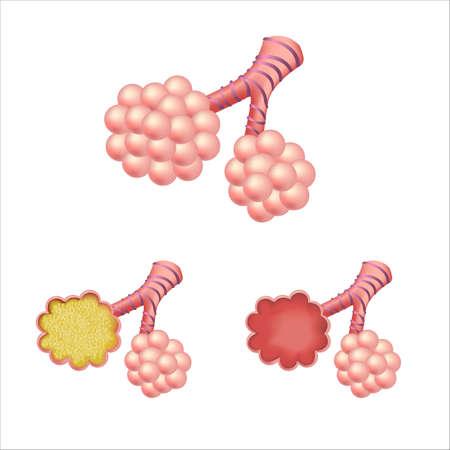 alveolos pulmonares: En los alvéolos Set, aisladas sobre fondo blanco, ilustración vectorial