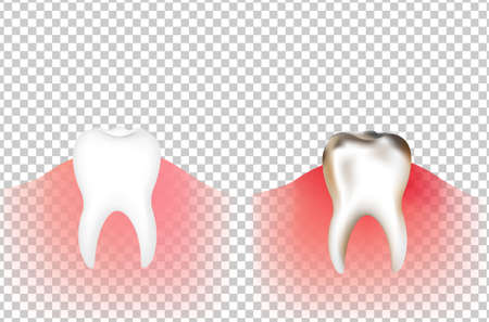 Tooths With Gradient Mesh, Vector Illustration Illustration