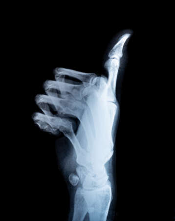 X-ray real scan thump up hand black background Foto de archivo