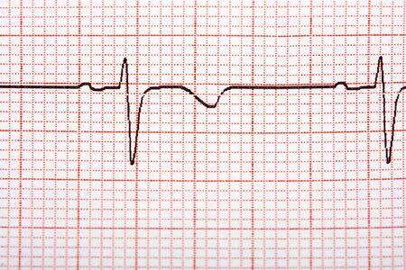 printout: Electrocardiogram printout on squared paper