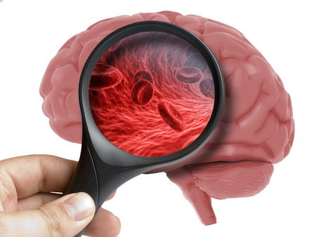 Human Brain Analyzed with magnifying blood cells inside isolated on white