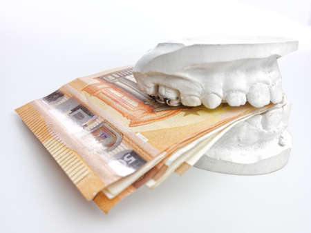 Closeup kid orthodontic dental impression chalk model biting euro money on white background