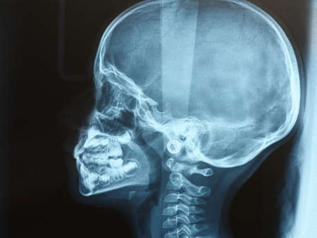 xray of the head of a child or kid side view