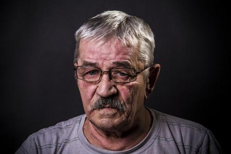 ojos tristes: hombre en gafas con ojos tristes