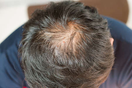 hairline: Hair loss, thinning hair and scalp