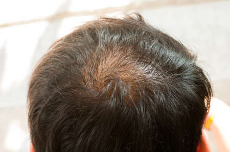 scalp: Hair loss, thinning hair and scalp