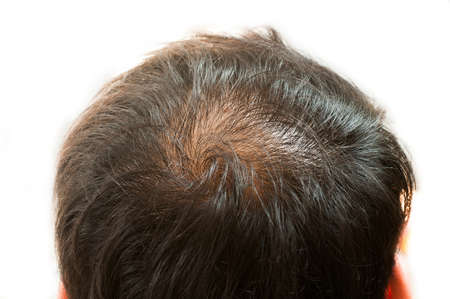 hombre calvo: La pérdida de cabello, adelgazamiento del cabello y del cuero cabelludo