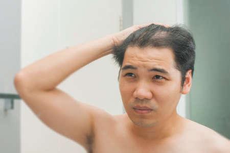 抜け毛によってかかわっている鏡の前に立っている若いアジア男
