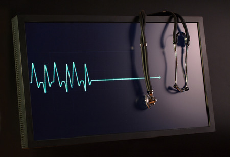 fading: Fading cardiogram and stethoscope on the monitor Stock Photo