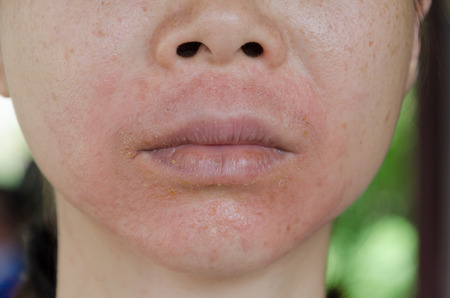 Human skin, presenting an allergic reaction, allergic rash. Stock Photo