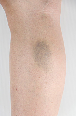 wounded: Bruise on wounded woman leg skin