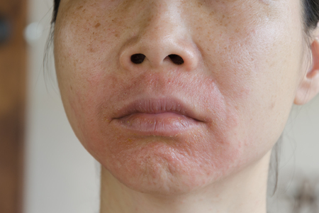 sarpullido: La piel humana, que presenta una reacción alérgica, erupción cutánea alérgica. Foto de archivo