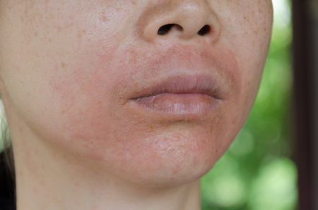 Human skin, presenting an allergic reaction, allergic rash. Banco de Imagens