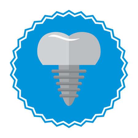 Tandheelkundige implantaat Stockfoto - 81418704