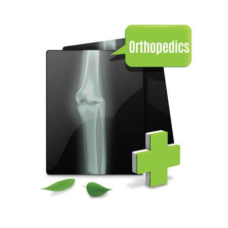 orthopedics: x-ray with speech bubble