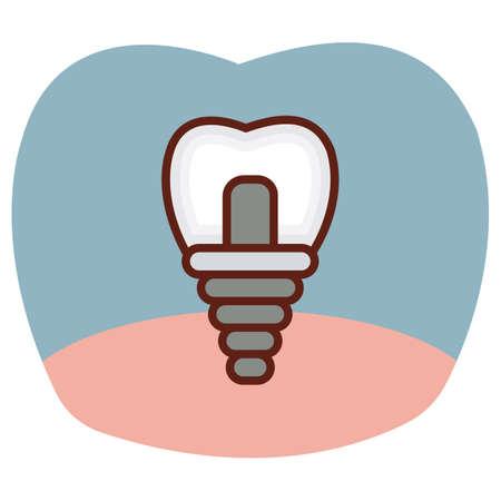 tooth implantation