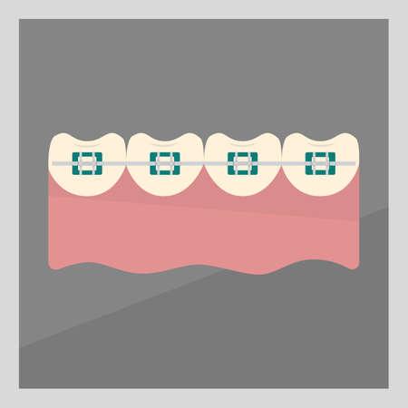 ブレースを有する歯 写真素材 - 81418740