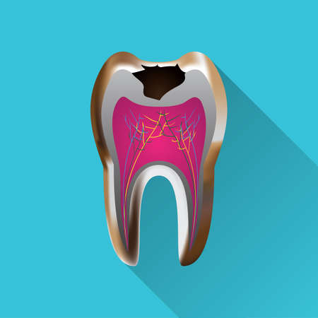 tooth with cavity