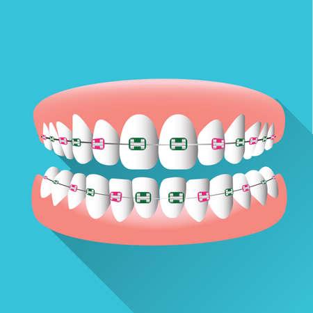 tanden met bretels Vector Illustratie