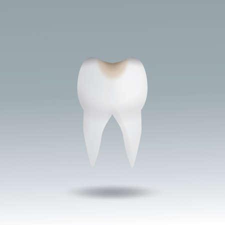 molar tooth cavity