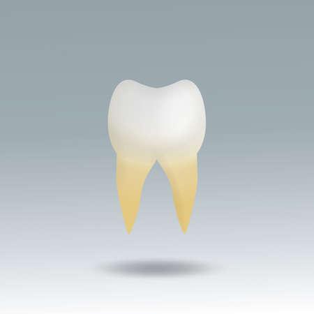 placa bacteriana: diente molar con la placa