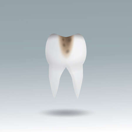 molar tooth cavity