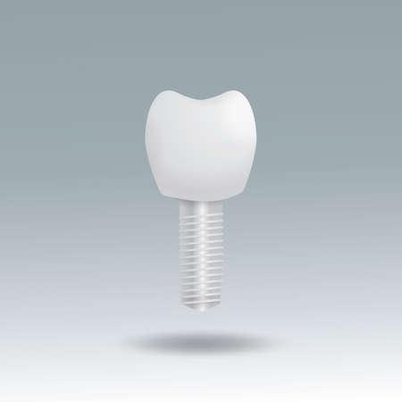 tooth implantatiom