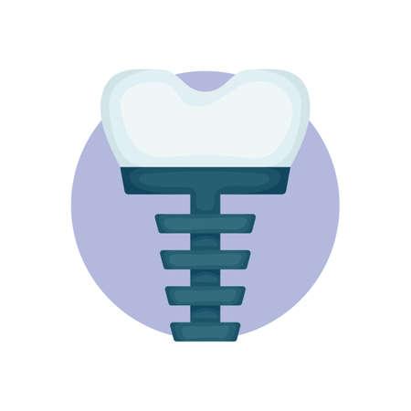 tooth implant Illustration
