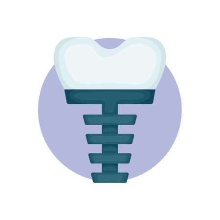 tooth implant 向量圖像