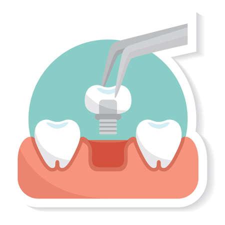 tooth implant Illusztráció
