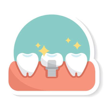 molar: tooth implant Illustration