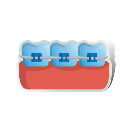 braces: braces on teeth Illustration