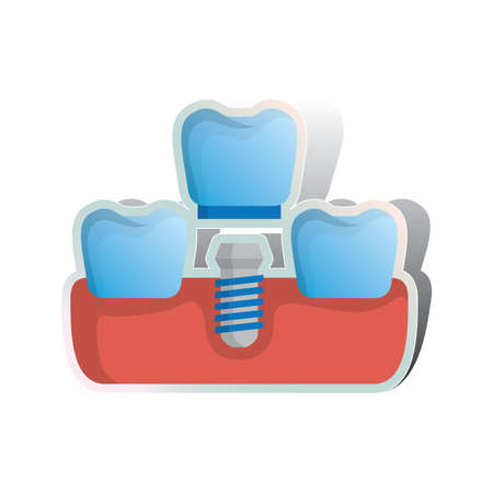replacing: replacing missing tooth with screw on false denture