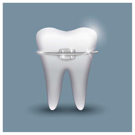 Zahn mit Zahnspange