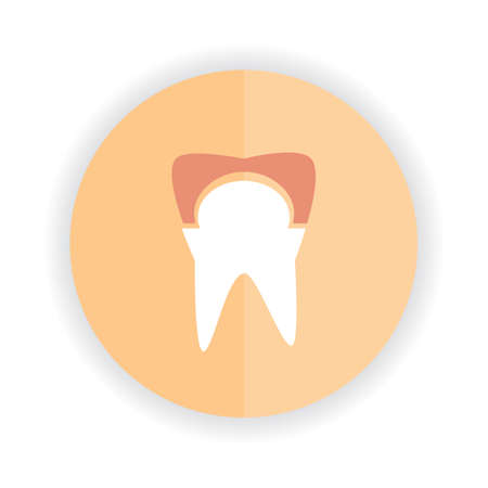 root canal: tooth with cavity Illustration