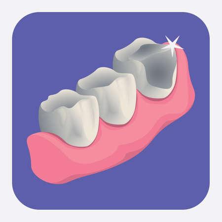 teeth with cavity