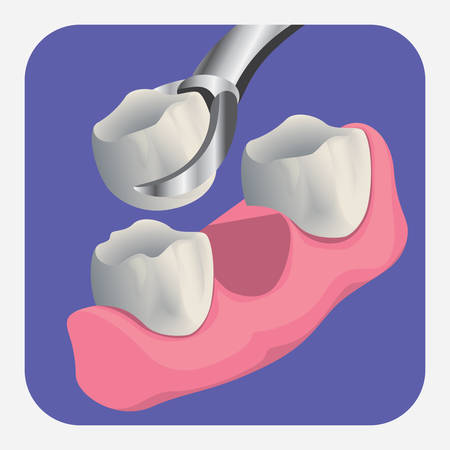 oral care: extracted tooth