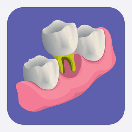 cavity: teeth with cavity