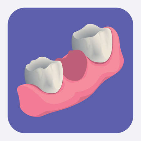 extracted: extracted tooth