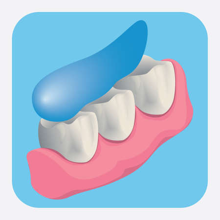 teeth cleaning: teeth cleaning Illustration