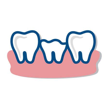 root canal: broken teeth
