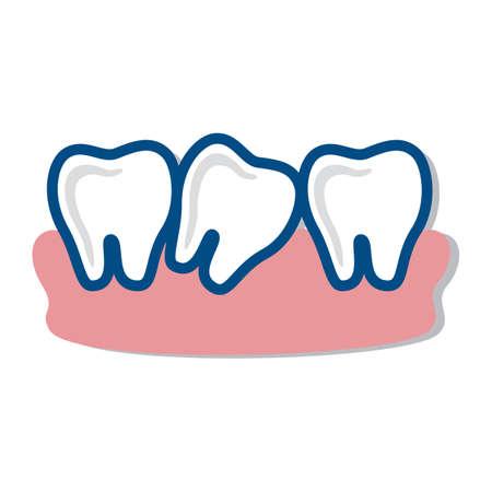 root canal: teeth enamel