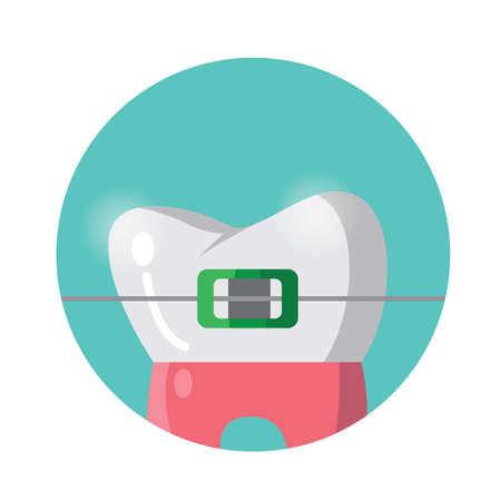 ブレースを有する歯します。  イラスト・ベクター素材