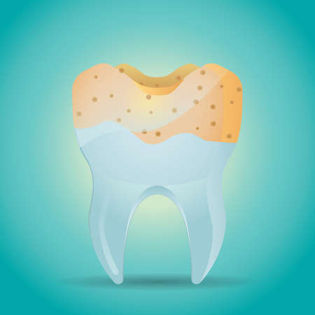 cavity: tooth with cavity Illustration