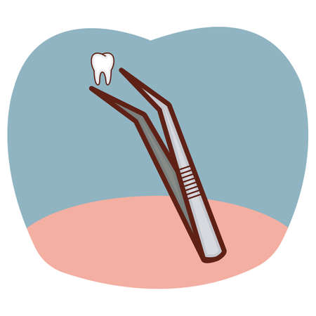 tweezers: tweezers with tooth Illustration