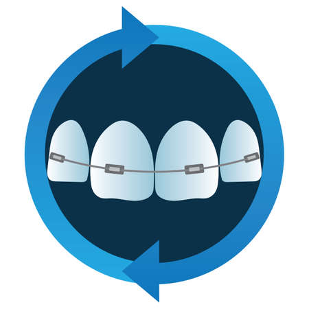 aligned: teeth with braces
