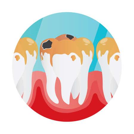 placa bacteriana: placa en los dientes